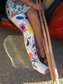 #30-3202R Roxie - plaster long leg cast